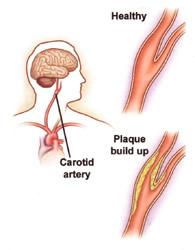CarotidArteryDisease2